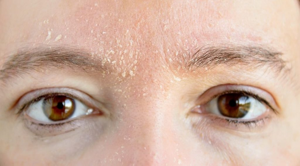 Apple face mask for dry skin