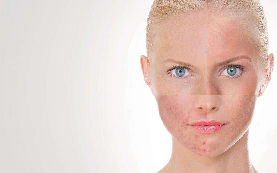 Apple face mask for sensitive skin