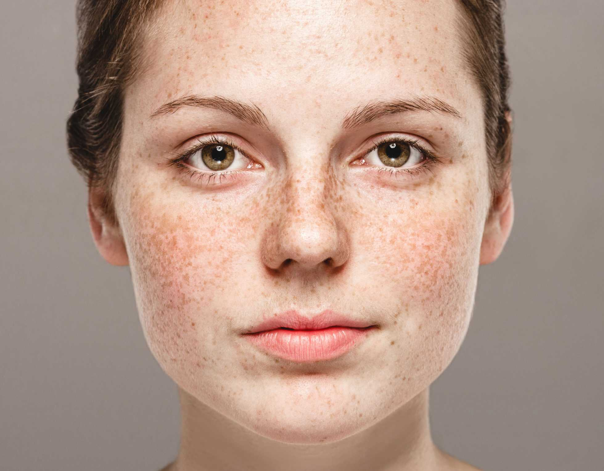 What you need to know about hyperpigmentation: types, causes, treatments –  Jioforme